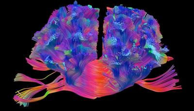 چپ مغزی و راست مغزی