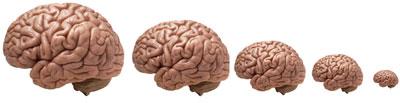 شبه علم: آیا مغز وارد سراشیبی میشود؟