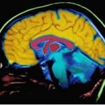 شبه علم: تصورات نادرست عمومی در مورد مغز