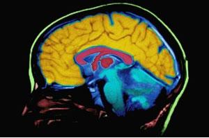 شبه علم - تصورات نادرست در مورد مغز - متمم - محل توسعه مهارتهای من
