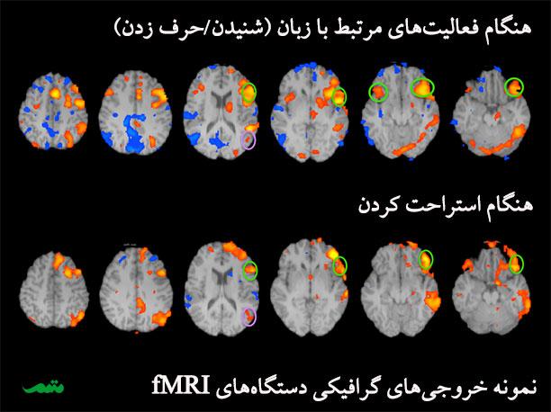دستگاه fMRI به خواندن ذهن انسان کمک میکند